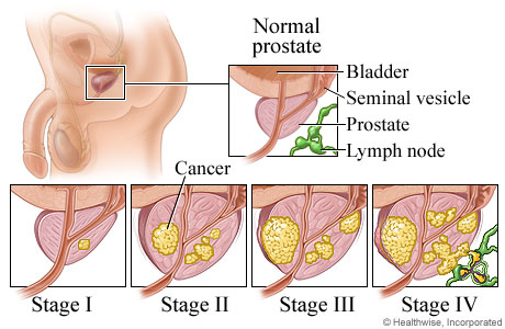 stage-of-prostate-cancer (1)